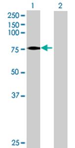 Western blot - VPS53 antibody (ab69422)