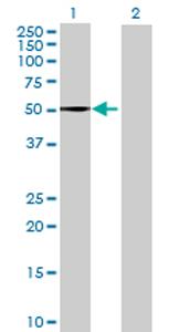 Western blot - QRSL antibody (ab69423)