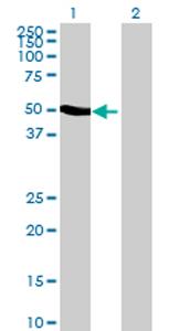 Western blot - RBM41 antibody (ab69424)