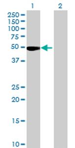 Western blot - CCDC91 antibody (ab69425)