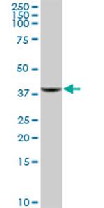 Western blot - GIMAP4 antibody (ab69426)