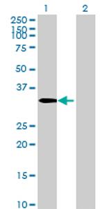 Western blot - CSTP1 antibody (ab69427)