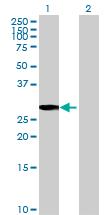 Western blot - Anti-TMA16 antibody (ab69429)