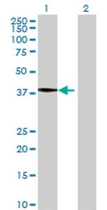 Western blot - AGPAT5 antibody (ab69430)