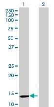 Western blot - SYNJ2BP antibody (ab69431)