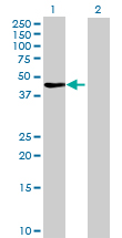 Western blot - Fbxl8 antibody (ab69432)