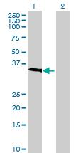 Western blot - GIMAP5 antibody (ab69433)