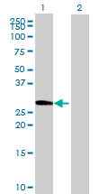 Western blot - DIMT1L antibody (ab69434)