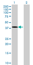 Western blot - DHDH antibody (ab69435)