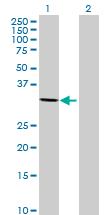 Western blot - NACA2 antibody (ab69439)