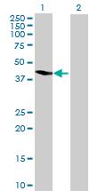 Western blot - AADACL2 antibody (ab69440)