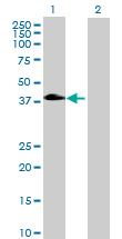 Western blot - SLC10A6 antibody (ab69445)