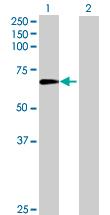 Western blot - ZNF530 antibody (ab69446)