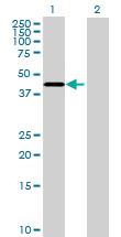 Western blot - NUP43 antibody (ab69447)