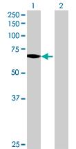 Western blot - SLC27A1  antibody (ab69458)
