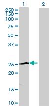 Western blot - TRIM50C antibody (ab69459)