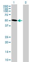 Western blot - KRT6L antibody (ab69462)
