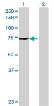 Western blot - MCTP1 antibody (ab69471)