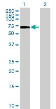 Western blot - C16orf44 antibody (ab69474)