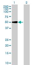 Western blot - UGT2A3 antibody (ab69478)
