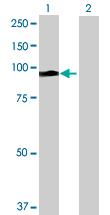 Western blot - ALS2CR8 antibody (ab69480)