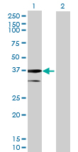 Western blot - AGMAT antibody (ab69482)