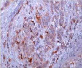 Immunohistochemistry (Formalin/PFA-fixed paraffin-embedded sections) - Osteopontin antibody [53] (ab69498)