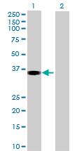 Western blot - SHARPIN antibody (ab69507)
