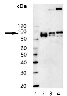 Western blot - Insulin Receptor beta antibody [C18C4] (ab69508)