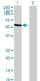 Western blot - KATNAL2 antibody (ab69518)