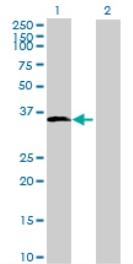 Western blot - Anti-DOHH antibody (ab69520)