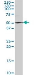 Western blot - DDX59 antibody (ab69521)