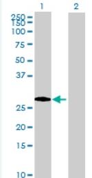 Western blot - TEX101 antibody (ab69522)