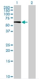 Western blot - CRISPLD1 antibody (ab69523)