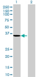 Western blot - HSDL1 antibody (ab69524)