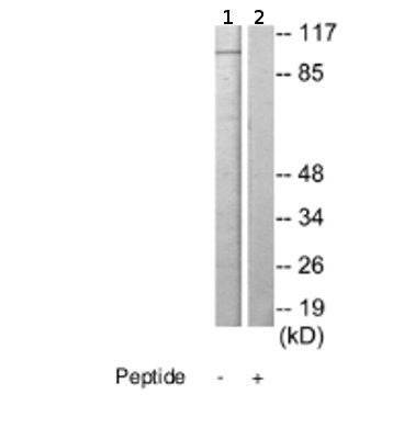 Western blot - Anti-KIAA1967 antibody (ab69562)