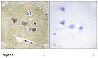 Immunohistochemistry (Formalin/PFA-fixed paraffin-embedded sections) - CAMKV antibody (ab69564)