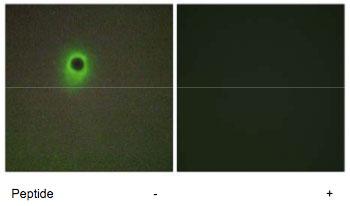 Immunocytochemistry/ Immunofluorescence - HIPK4 antibody (ab69565)