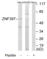 Western blot - ZNF397 antibody (ab69570)