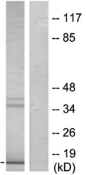 Western blot - LIM domain only 3 antibody (ab69573)