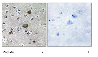 Immunohistochemistry (Formalin/PFA-fixed paraffin-embedded sections) - AKAP1 antibody (ab69580)