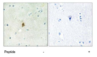Immunohistochemistry (Formalin/PFA-fixed paraffin-embedded sections) - TAF15 antibody (ab69581)