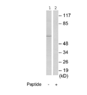 Western blot - beta 2 Adrenergic Receptor antibody (ab69598)