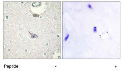 Immunohistochemistry (Formalin/PFA-fixed paraffin-embedded sections) - Cell adhesion molecule 4 antibody (ab69605)