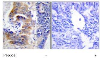 Immunocytochemistry/ Immunofluorescence - CDCA3 antibody (ab69608)