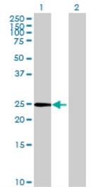 Western blot - GALNT9 antibody (ab69615)