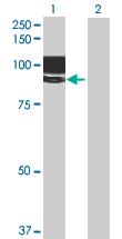 Western blot - LRFN1 antibody (ab69662)