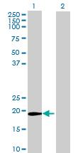 Western blot - ZFAND1 antibody (ab69664)