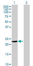 Western blot - ISOC2 antibody (ab69665)