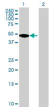 Western blot - EFCAB4B antibody (ab69667)